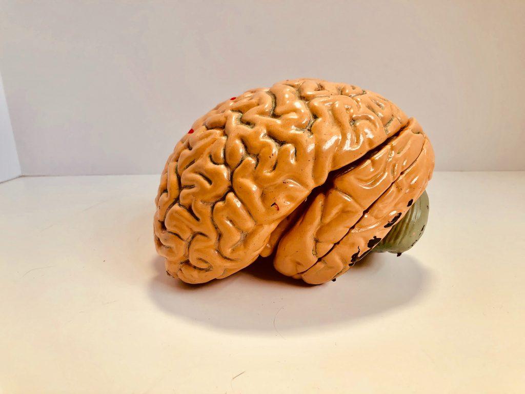 Brein onderzoek bij dementie