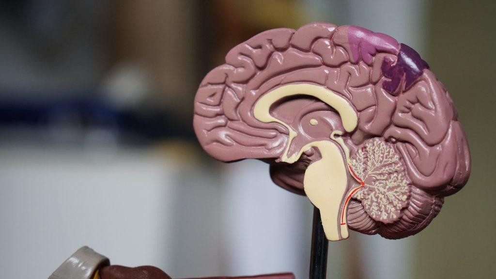 factoren oorzaak alzheimer in hersenen