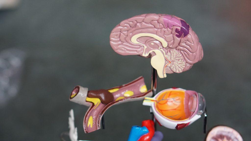 geheugenstoornis in hersenen vanwege dementie